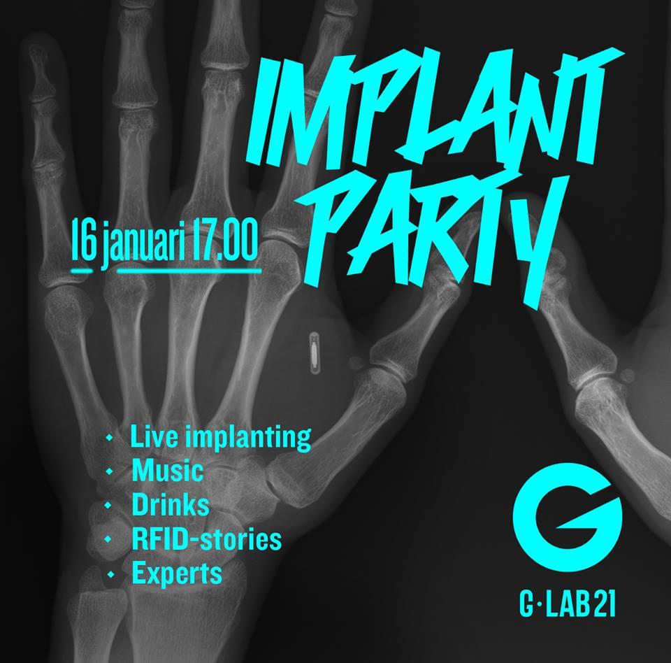 implantn